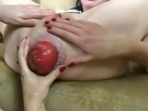 Three incredible hands in prolapsed butt